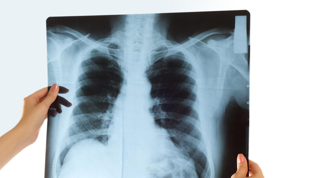 Καρκίνος του πνεύμονα, ακτινογραφία θώρακος ασθενούς